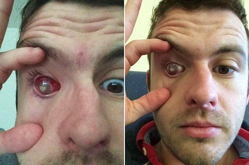 Khiếp sợ thanh niên mù cả mắt chỉ vì điều đơn giản này