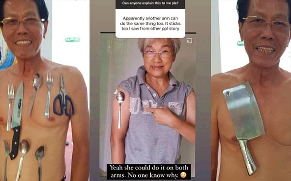Tiêm vaccine phòng Covid-19 xong, nhiều người khoe có khả năng như nam châm