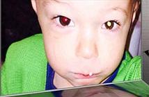Phát hiện ung thư mắt ở trẻ nhỏ nhờ bật flash khi chụp ảnh