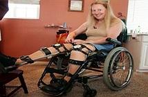 Bệnh quái đản của những người muốn tự cắt bỏ chân tay