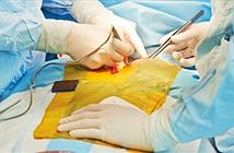 Italy thực hiện ca cấy ghép thực quản nhân tạo đầu tiên trên thế giới