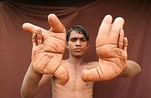 Cậu bé bị dân làng gọi là quỷ dữ vì đôi tay to bất thường