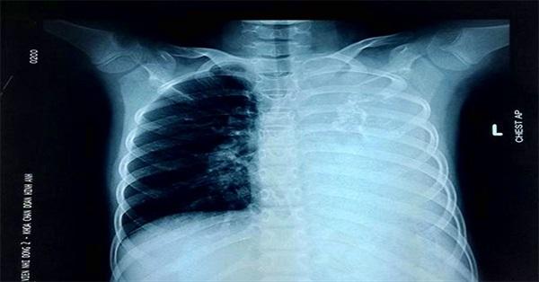 Bé gái ho dai dẳng kéo dài vì mắc bệnh cực hiếm, cả thế giới chưa đến 20 trường hợp