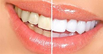 14 cách làm răng trắng hơn