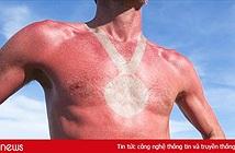 Trào lưu hình xăm rám nắng đang gây sốt MXH và những nguy cơ tiềm tàng phía sau mà nhiều người không hay biết