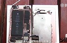 Chấn thương da mặt nghiêm trọng, phồng tay do iPhone 7 phát nổ