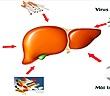 Men gan cao và cách giảm không cần thuốc