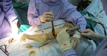 Phẫu thuật kéo dài chân diễn ra như thế nào?