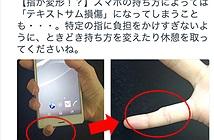 Biến dạng ngón tay vì khư khư ôm điện thoại ?!