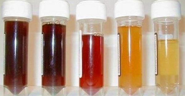 Chuẩn đoán bệnh qua nước tiểu