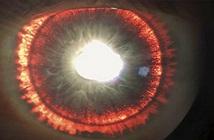 Bị bệnh hiếm gặp, người đàn ông có đôi mắt giống Sauron