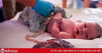 """Bộ Y tế đề nghị ngăn chặn truyền bá phương pháp sinh con """"thuận tự nhiên"""" trên mạng xã hội"""