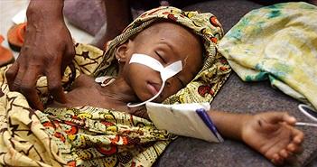 Cảnh báo tình trạng ký sinh trùng sốt rét tồn tại trong máu dự trữ ở các nước châu Phi