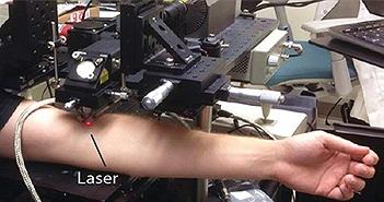 Công nghệ laser mới có thể tiêu diệt tế bào ung thư hắc tố