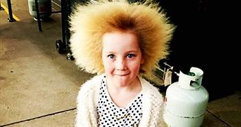 """Kỳ lạ bé gái 8 tuổi có mái tóc """"dựng đứng"""" giống Albert Einstein"""