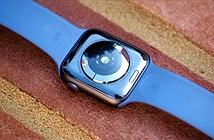 Đồng hồ thông minh có thể phát hiện sớm các dấu hiệu mắc Covid-19