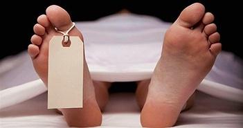 Các giai đoạn biến đổi của cơ thể người sau khi chết
