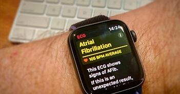 Khách hàng cảm ơn vì được Apple Watch cứu sống, CEO Tim Cook lập tức gửi mail cảm ơn lại