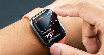 Khôi hài khi Apple Watch bị kiện vì tính năng theo dõi nhịp tim