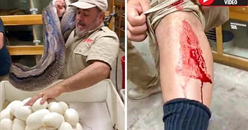 Rùng rợn trăn khổng lồ cắn ngập răng vào người bảo vệ trứng
