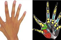 Có 6 ngón tay không vô dụng như các bác sĩ từng nghĩ