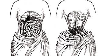 Tác hại khôn lường của đai nịt bụng