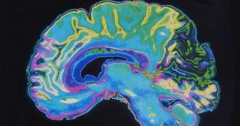 Trí tuệ nhân tạo của IBM có thể dự đoán bệnh tâm thần phân liệt