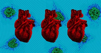 Chữa lành tổn thương tim ở trẻ sơ sinh nhờ cấy ghép ty lạp thể