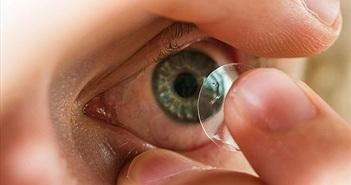 Đeo kính áp tròng khi ngủ tăng nguy cơ nhiễm khuẩn mắt gấp 6-8 lần
