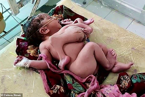 Xót thương bé gái vừa chào đời có 4 chân và 3 tay