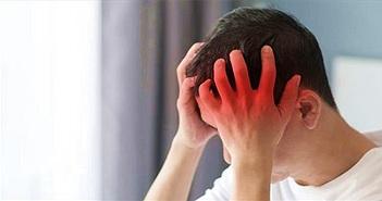 10 chứng đau đầu thường gặp và cách chữa trị