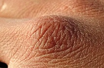 500 triệu tế bào da đào thải mỗi ngày nhưng vì sao máu, chất dịch cơ thể không rò rỉ qua da?