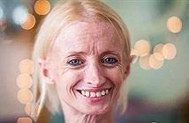 Lạ người phụ nữ trẻ nhìn như cụ già và sự thực xót xa