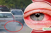 Ô nhiễm do khói xe: Nguyên nhân hàng đầu gây các bệnh về mắt