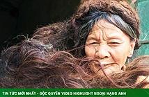 Người phụ nữ có mái tóc kì dị: Kết thành nhiều mảng, cứ cắt là đổ bệnh