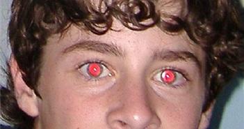 """Nguyên nhân, cách khắc phục hiện tượng """"mắt đỏ"""""""