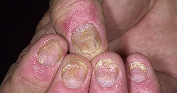 8 nguyên nhân chính gây ra bệnh vẩy nến