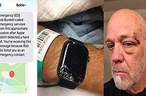Apple Watch đã cứu sống cụ ông bị ngã khi đạp xe