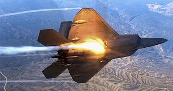"""Nga phát triển radar """"tóm sống"""" máy bay tàng hình Mỹ"""
