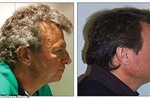 Bác sĩ bất ngờ vì bệnh nhân ung thư không bị rụng tóc khi hóa trị