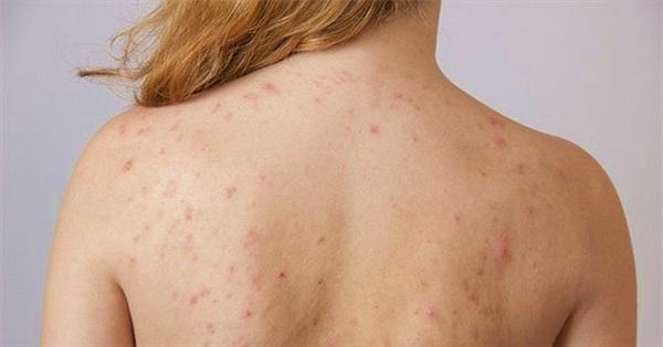 Lưng mọc nhiều mụn có thể là biểu hiện của 4 vấn đề sức khỏe sau