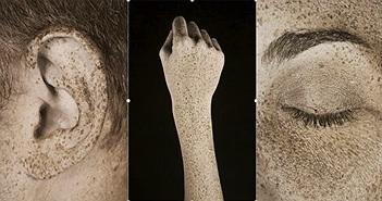 Tác hại của tia UV lên da qua ống kính nhiếp ảnh gia người Pháp