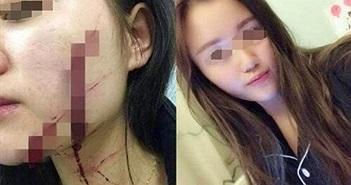 Thuê nhà chung, cô gái tự tử ba lần vì điều đáng sợ này