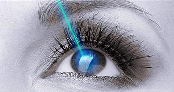 """Lợi và hại của phương pháp phẫu thuật cận thị """"không chạm"""" mới ở Việt Nam"""