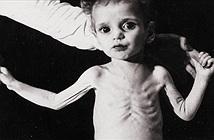 Những bệnh thường gặp khi nhiễm độc chì