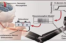 Da điện tử giúp người cụt chi cảm nhận được cảm giác đau và đồ vật