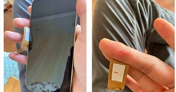 Người dùng phàn nàn cạnh iPhone 12 quá sắc gây đứt tay, kính camera bị nứt