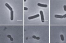 Lần đầu tiên các nhà khoa học phát hiện những con vi khuẩn zombie