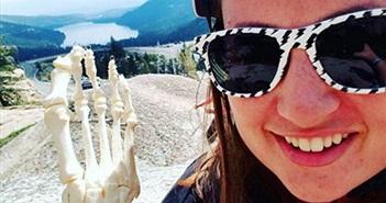 Người phụ nữ đem bộ xương bàn chân mình đi khắp nước Mỹ