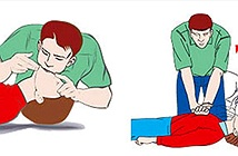 Những kỹ năng cấp cứu cơ bản ai cũng nên biết
